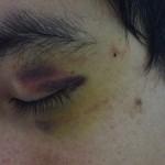 A nice black eye!